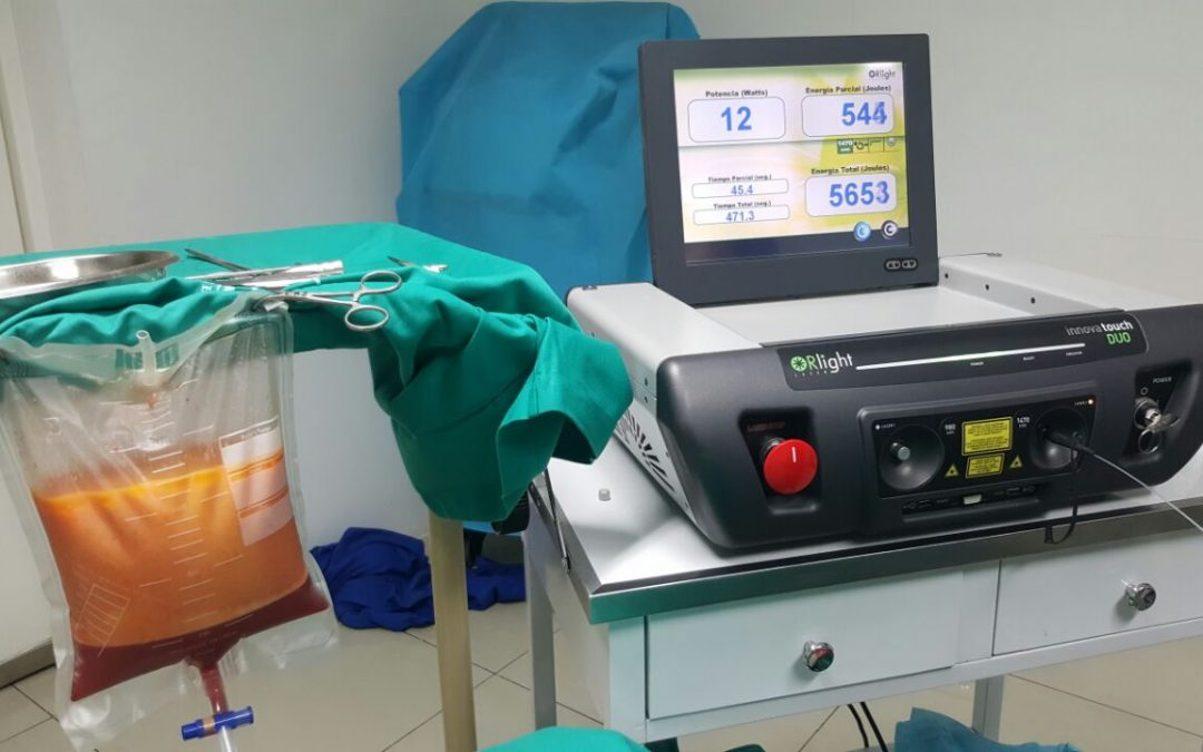 Liposucción Diodo Laser