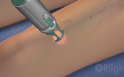 Lesiones Vasculares Superficiales y Telangiectasias con diodo laser 980nm