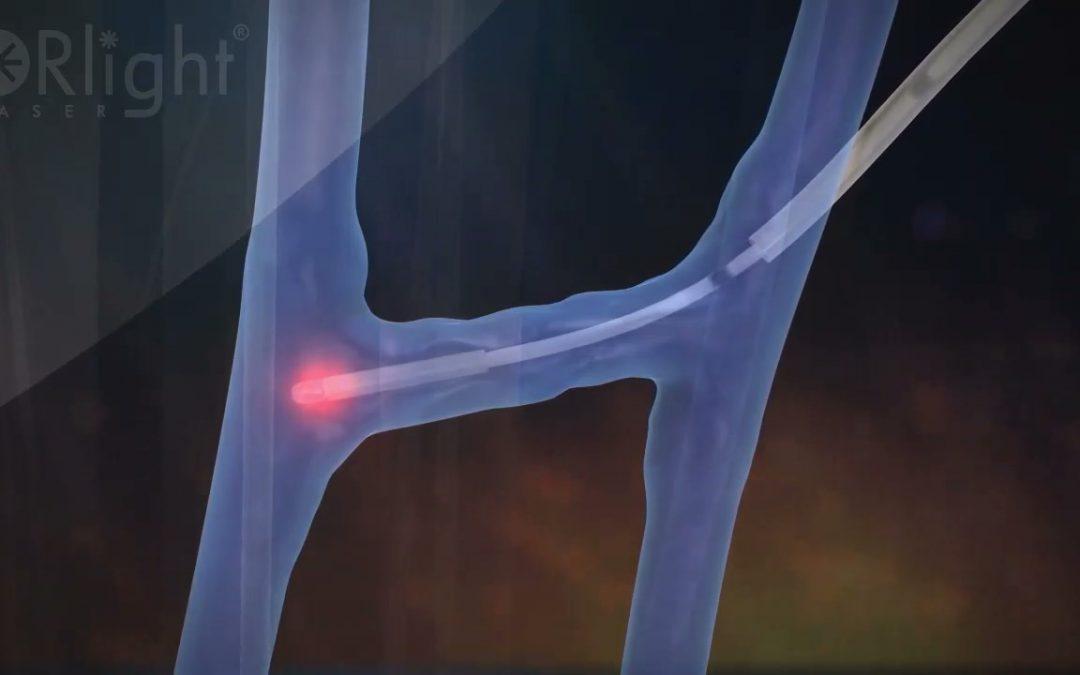 Cirugía Laser de Perforantes con diodo 1470nm
